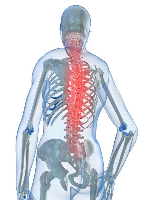 Osteopatia - dor de costas - Clínica de Osteopatia